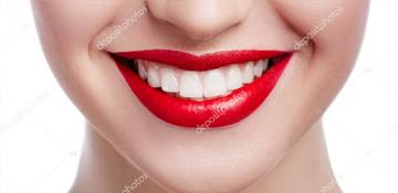 Dental-Vaneers